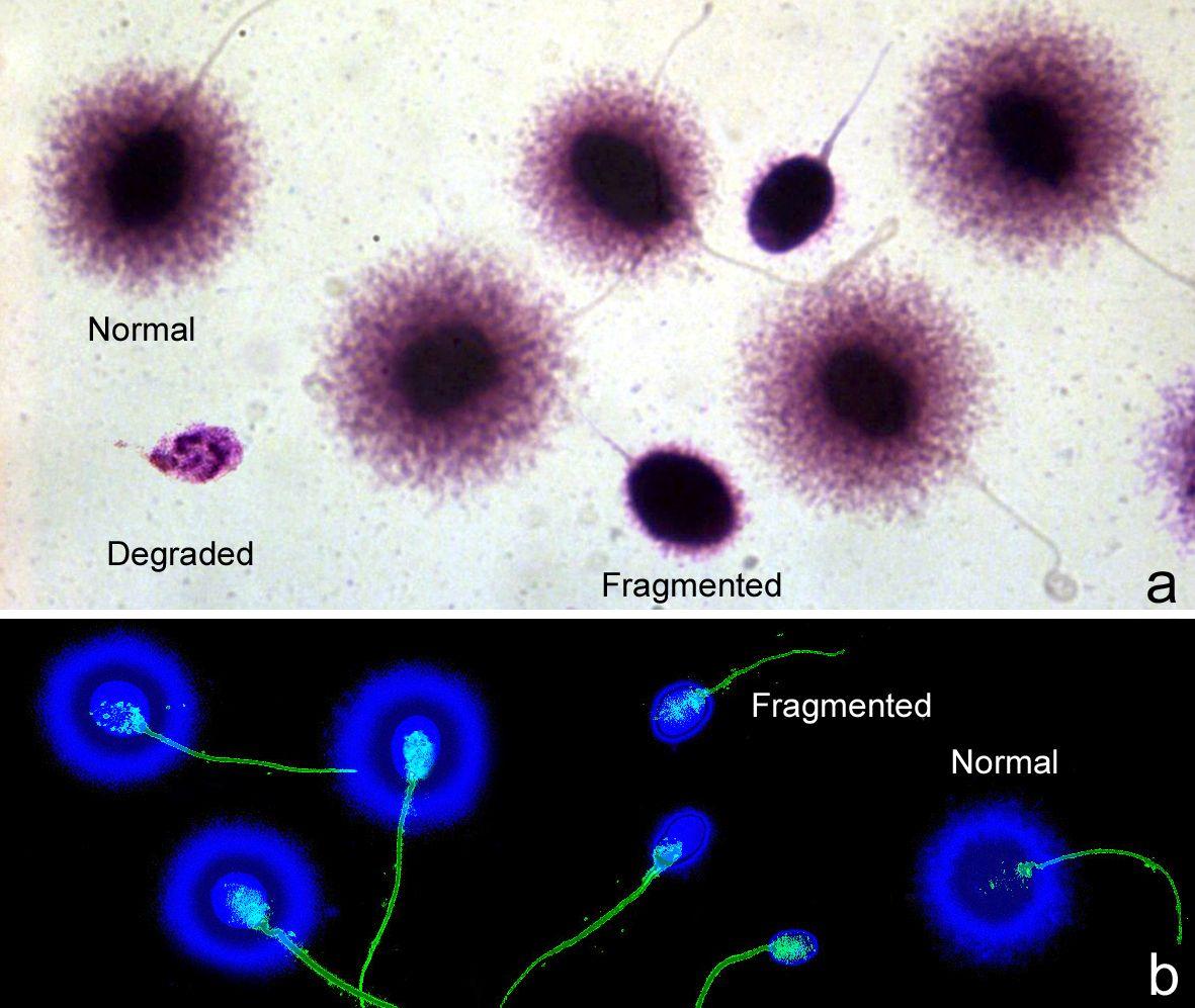 test SCD, zonas fragmentadas y normales