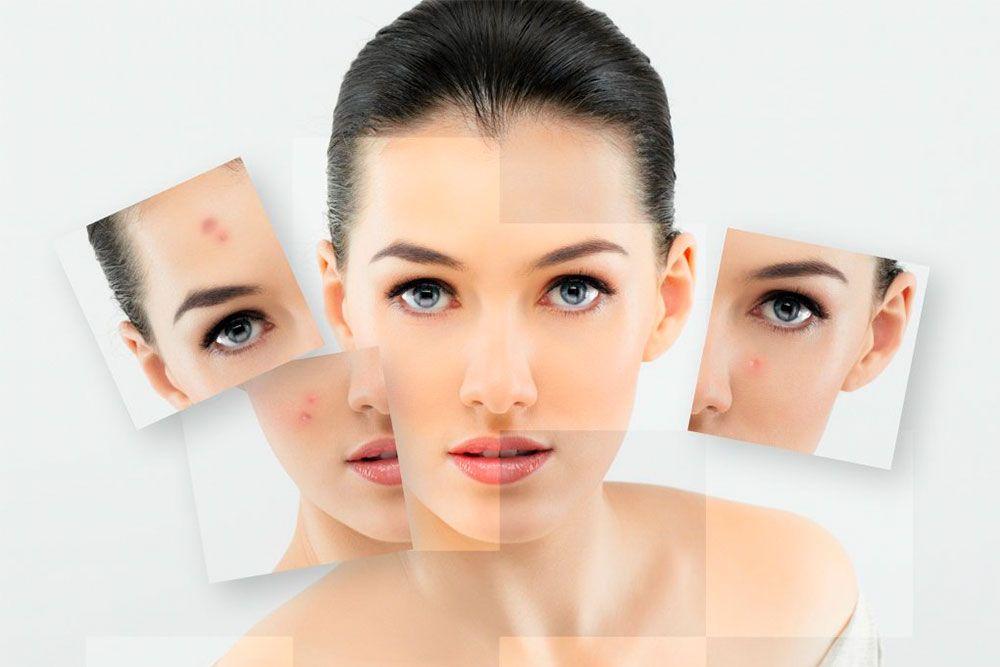 La piel acnéica requiere de unos cuidados concretos, tanto en el uso de cosméticos como en la alimentación. Con estos consejos se puede aliviar el problema