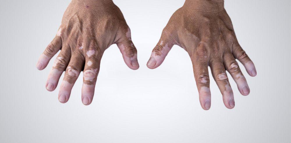 Vitíligo, la enfermedad autoinmune que provoca manchas blancas en la piel. Las diferentes opciones de tratamiento sirven para mejorar esta despigmentación